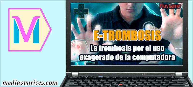 Trombosis por el uso de la computadora